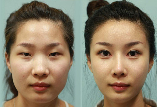 Facts About Double Eyelids; Cost for Double Eyelid Surgery